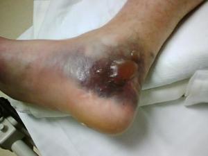 dad foot 1