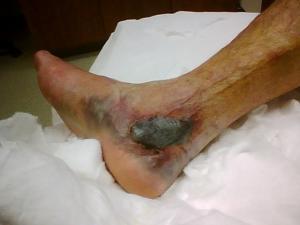 dad foot